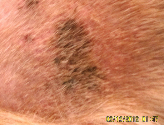 Cured hot spot, hair growing back