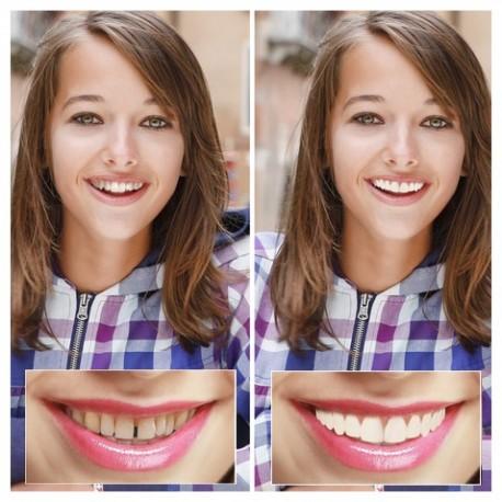 Cosmetic Teeth
