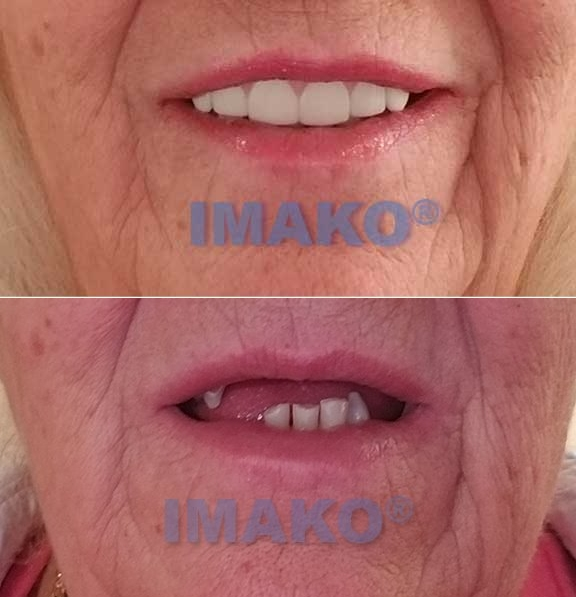 Imako clip-on teeth before and after