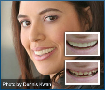 Temporary teeth that look real