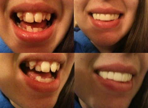 perfect smile veneers for her class reunion