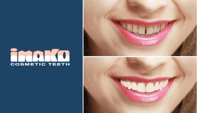 Fake Cosmetic Teeth Before and After